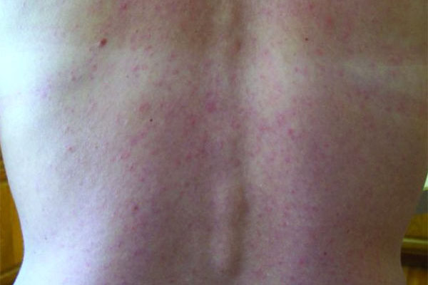 Image: Rash caused by Zika virus.